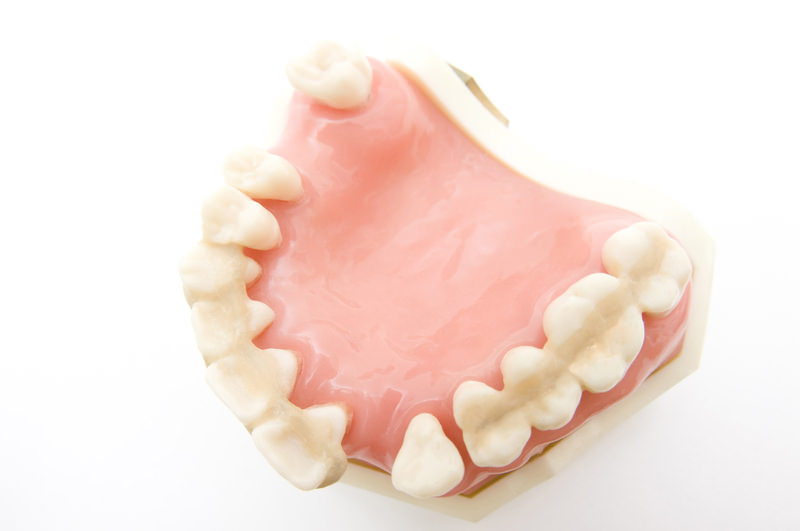 歯の隙間から健康が逃げていませんか